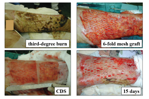 three stages of skin graft healing